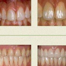 Amityville Dental